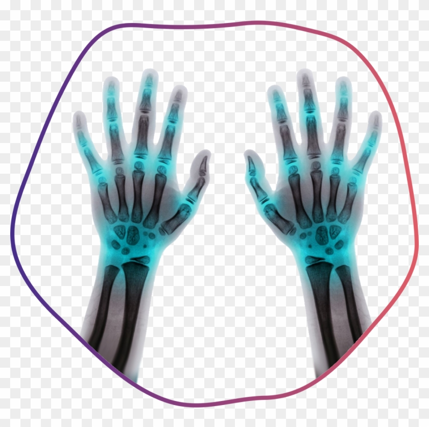 Fingers X Ray Hd Png Download 1112x1054 5216517 Pngfind # png file svg file eps file cdr file. pngfind