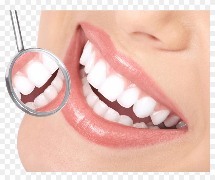 Dental Veneers Smile Dental Png Transparent Png 2658x1835 6433231 Pngfind